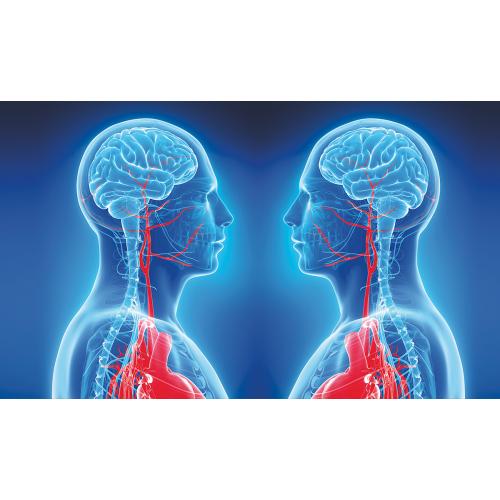 produkt - Jakość życia chorych po rewaskularyzacji krytycznego zwężenia tętnicy szyjnej wewnętrznej
